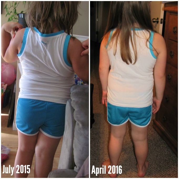 Aysa Before & After via Nutritionist in the Kitch